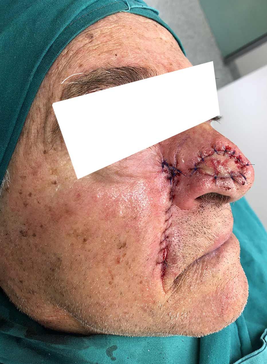 Skin Flap Reconstruction
